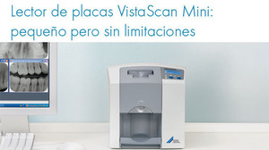 vistaScan mini